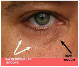Tear trough and infraorbital are